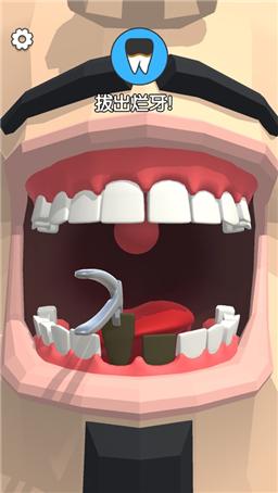 我美牙贼6截图